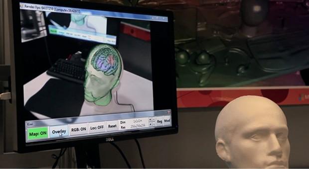 kinect-fusion-brain-1